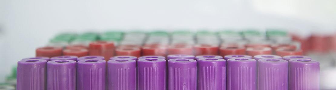 Klinische chemie: interpretatie van laboratoriumresultaten - Editie 6